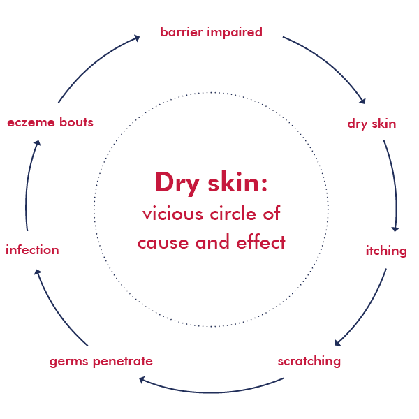 Infographics about the itchy vicious circle