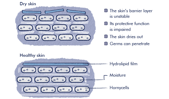 Graphic showing the effect of skin care for neurodermatitis